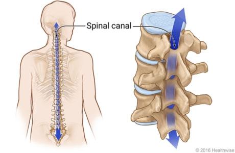 כאבי גב בגיל השלישי